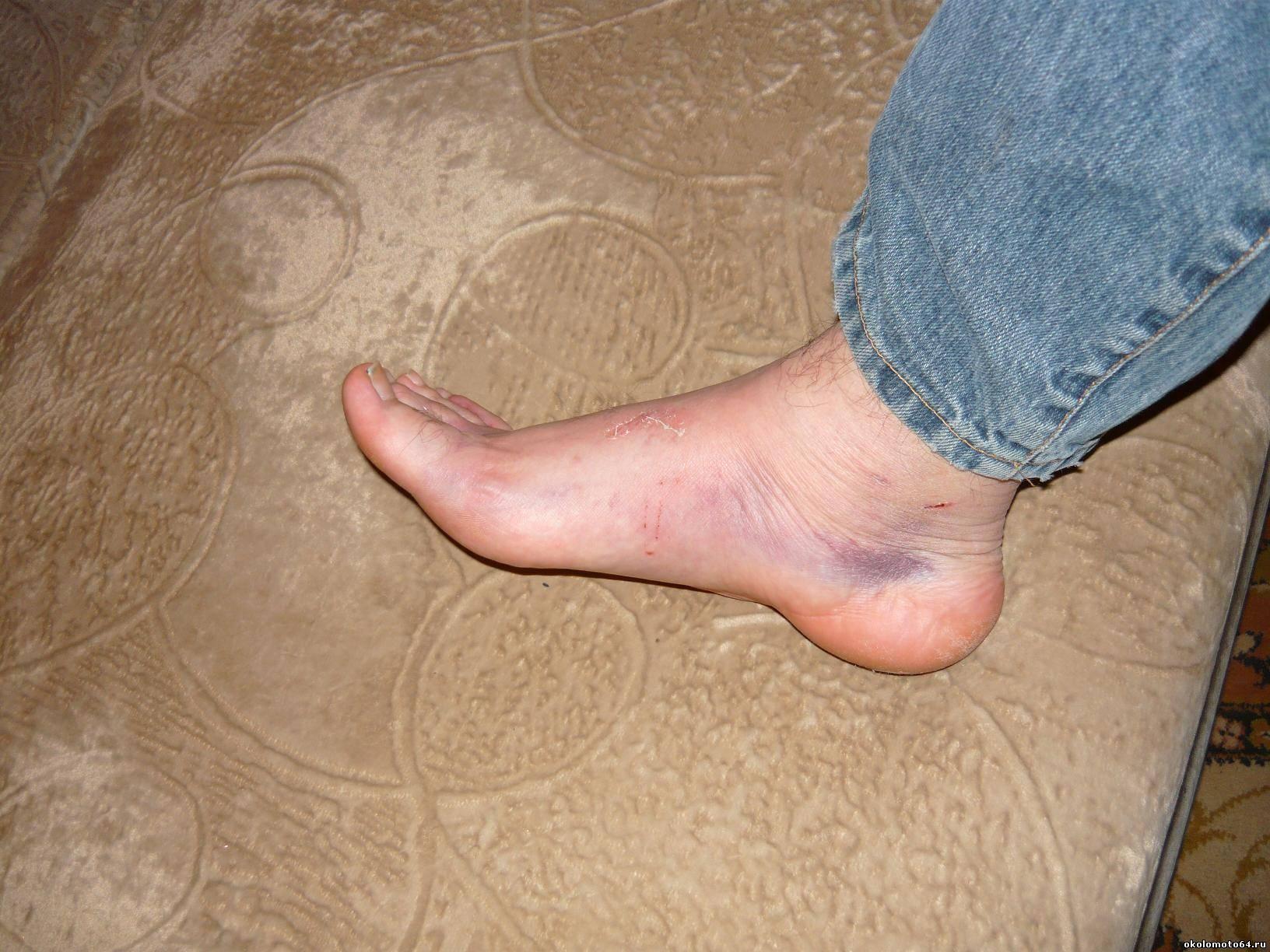 Как снять опухоль после ушиба ноги в домашних условиях 951